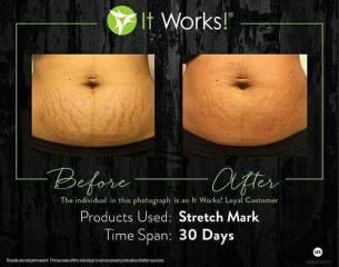 stretch mark 30 days